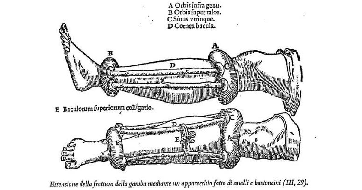"""L'Artrosi era il principale """"Nemico"""" dell'Impero Romano"""
