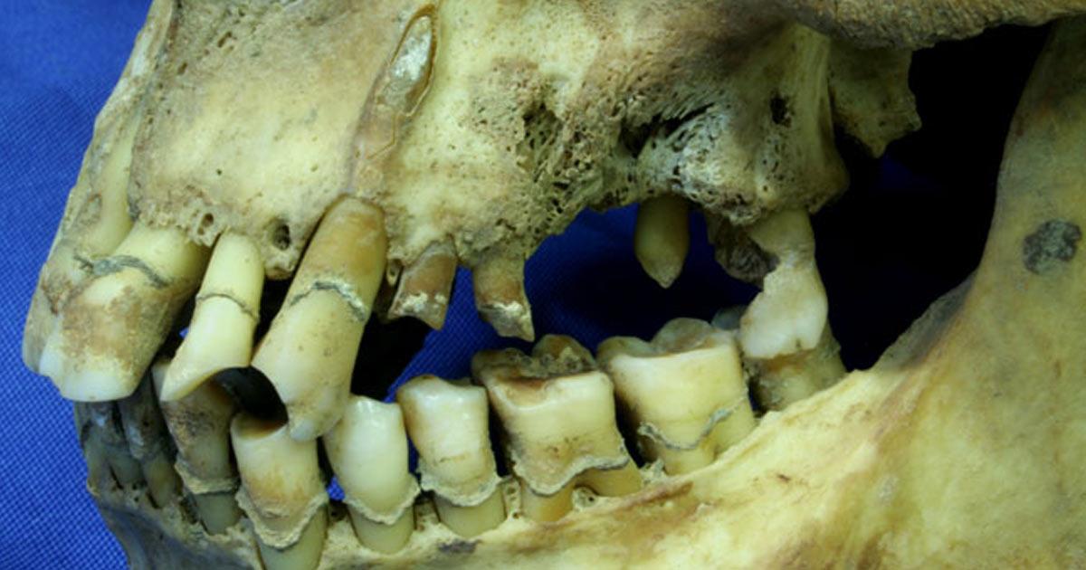 Un nuovo studio correla fumo e salute dentale durante la carestia irlandese vanilla magazine - Finestra tra i denti ...